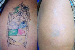 arm-laser-tattoo-removal-before-and-after